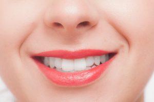 【歯の矯正器とリストカット跡】があってもAVのお仕事は出来ますか?